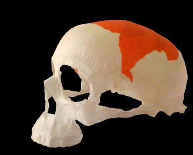 """Crâne à la tomate"""